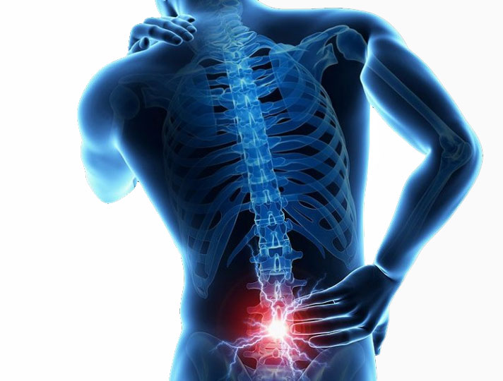 Back pain caused by bad mattress